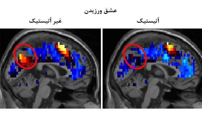 تشخیص اتیسم(اوتیسم)با اسکن مغزی(ام ار ای)