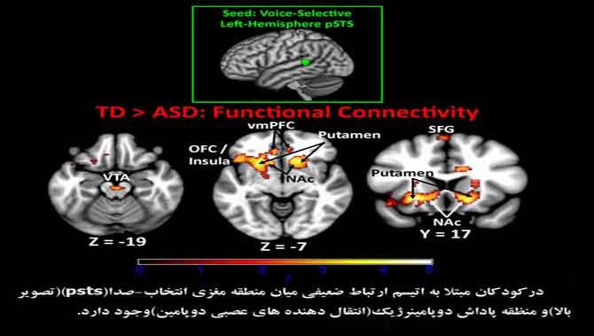 عدم واکنش به گفتار در کودک دارای اتیسم(اوتیسم)