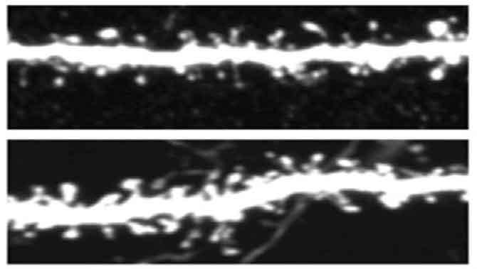 اختلالات نورونی در افراد اتیستیک