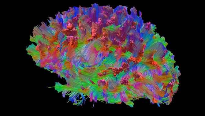 اختلال طیف اوتیسم وپلاستیسیته مغز