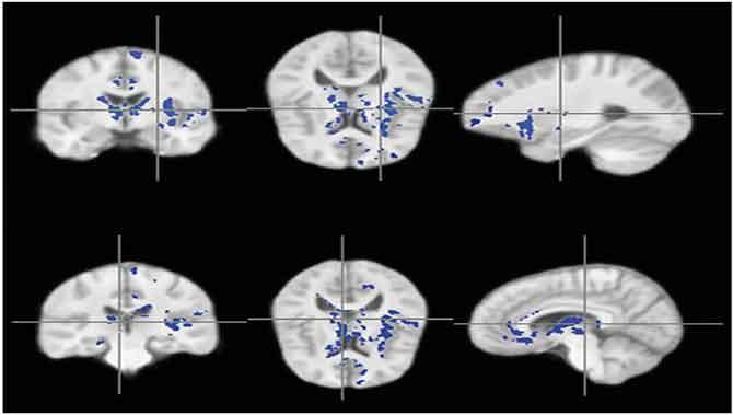 کمی میلین در نورونهای مغزکودک دارای اتیسم(اوتیسم)