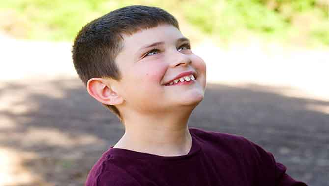 اختلال اتیسم(اوتیسم)شدیدیاسطح3