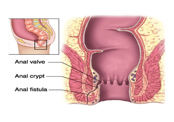 روش های مختلف درمان فیستول مقعد