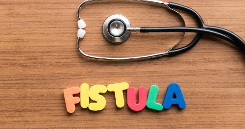 لیزر فیستول برترین روش درمان فیستول مقعد
