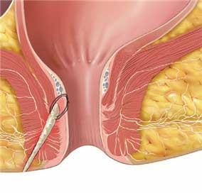 درمان خانگی فیستول واژن