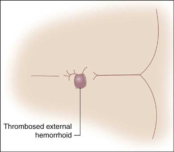 روش های مختلف درمان هموروئید ترومبوزه