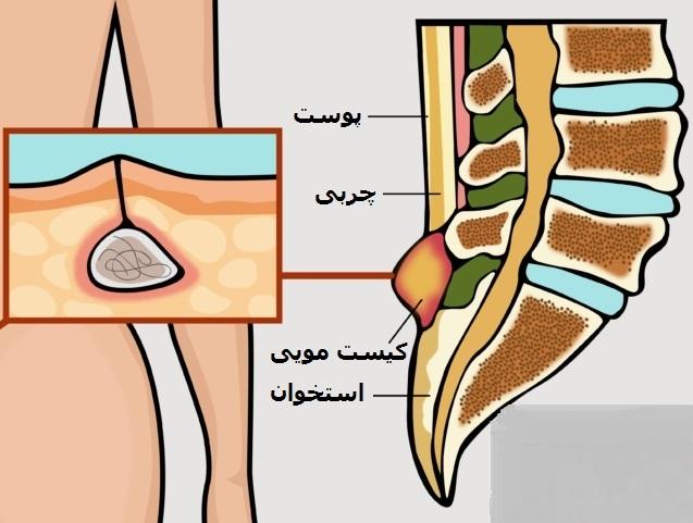 درمان کیست مویی با لیزر