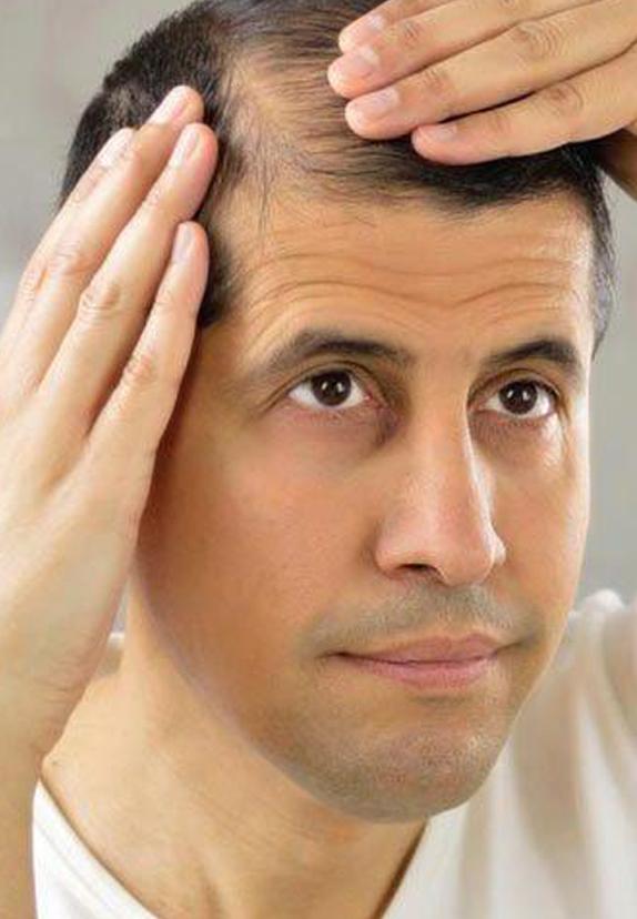 درمان ریزش مو با راهکارهای موثر و علمی