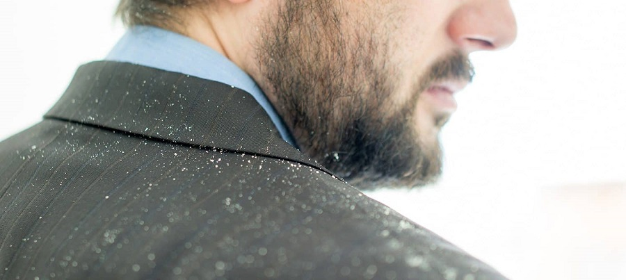 آیا شوره سر می تواند باعث ریزش مو شود؟