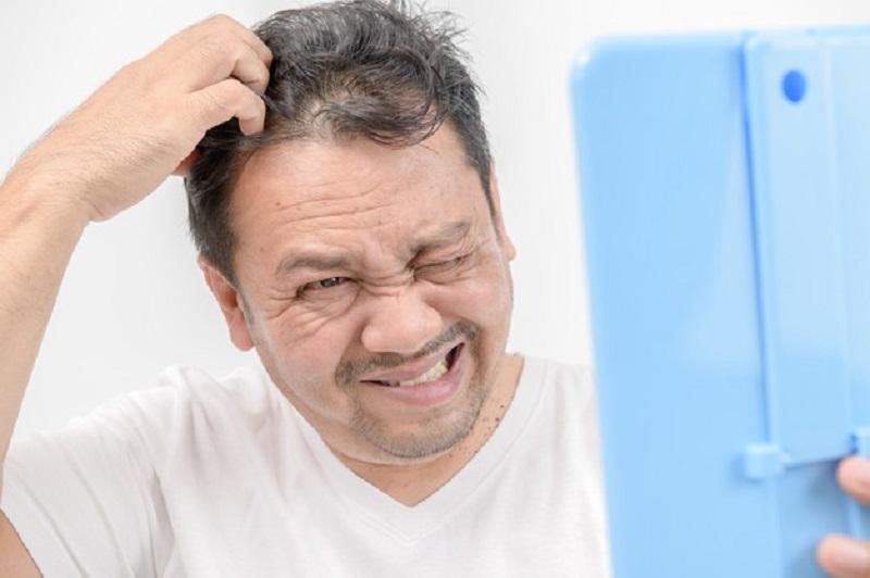 درمان شوره سر بعد از کاشت مو