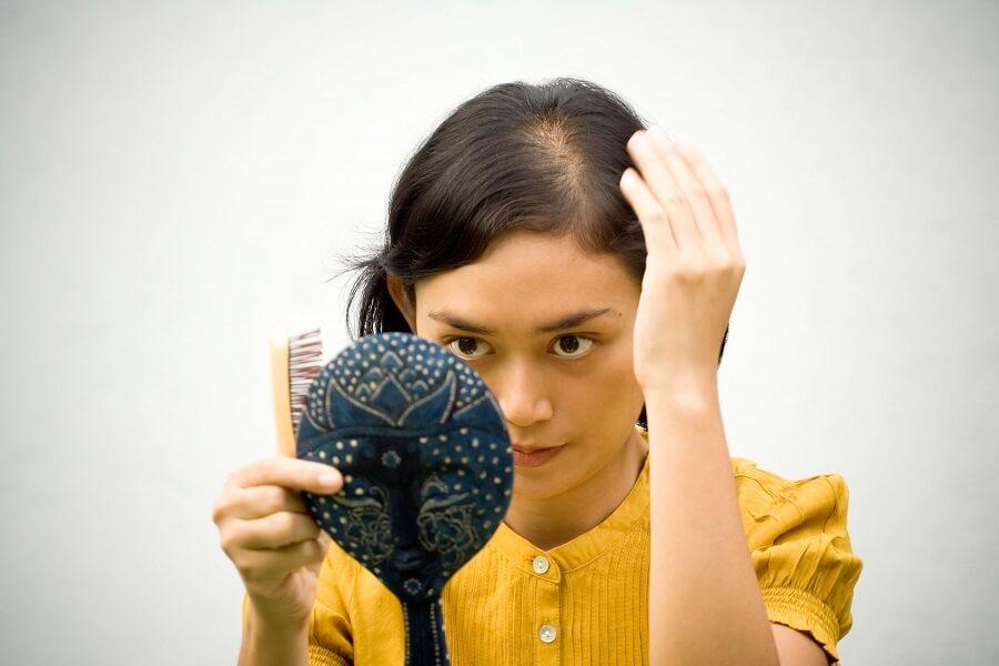 ریزش مو در جوانان و روش های درمان آن