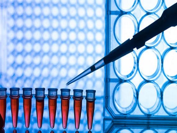 آزمایش QF-PCR تشخیص سریع اختلالات کروموزومی در نمونه های جنینی