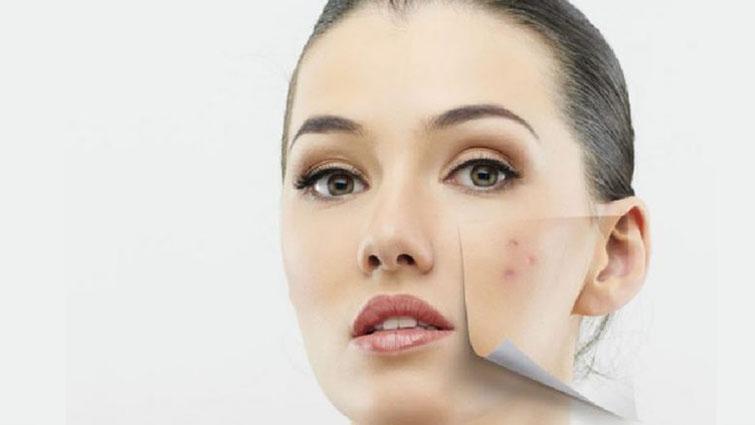 تغییرات پوست در سیکل قاعدگی و هورمونها