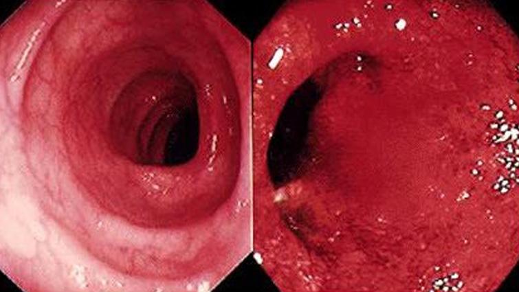 التهاب روده بیماری که دیر تشخیص داده میشود
