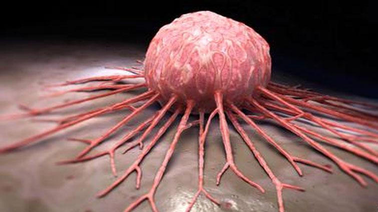 سرطان و غذاهای ضدسرطان