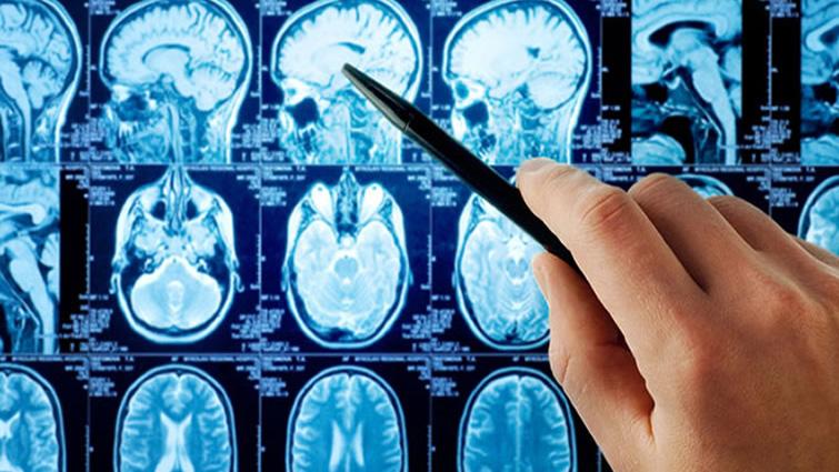عملکرد مغز انسان در هوای گرم