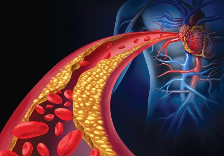 سطح چربی خون ممکن است در برخی افراد اتیسم تغییر کند