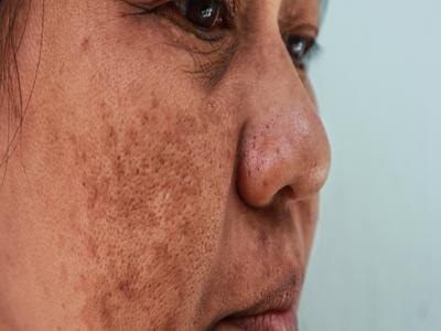 لکه های پوستی مادرزادی که بر اثر تولید بیش از حد ملانین به وجود می آیند.
