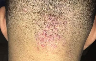 فولیکولیت موی سر و خارش ان